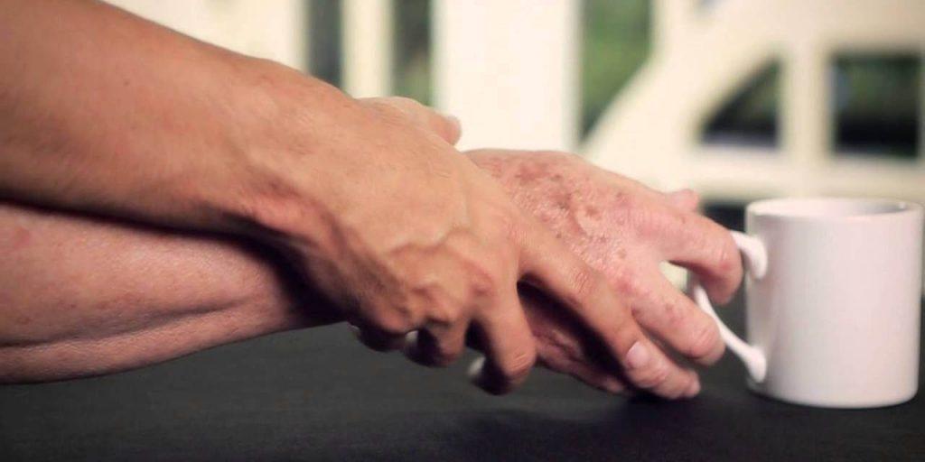 Mal de Parkinson, sintomas e cuidados