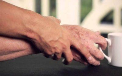 Parkinson sintomas e tratamentos